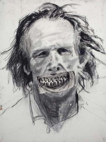 Nick nolte with gingivitis
